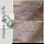 เซรั่มลบรอยแผลเป็น - AZANIS SCAR SERUM thumbnail 14